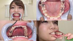 【歯フェチ】高美はるかちゃんの歯を観察しました!