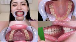 [Tooth Fetish] I observed Aya Shiomi's teeth!